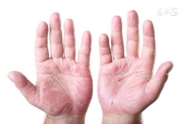 身上很多多少又红又痒的小水泡,叫湿疹,一个小土豆就能搞定它!