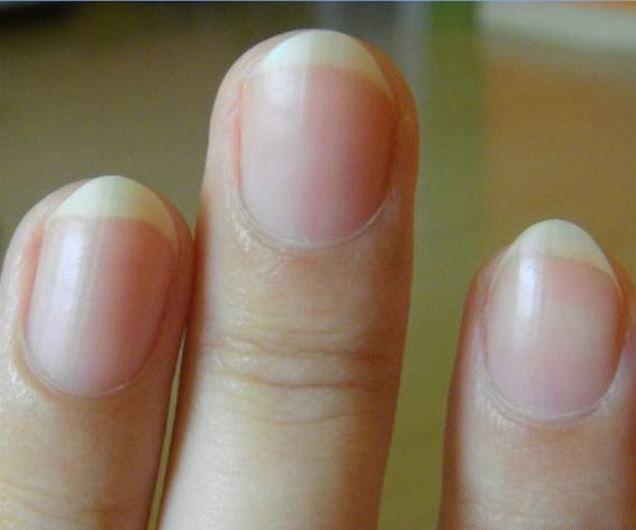 指甲上的月牙